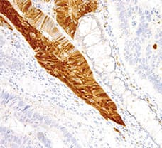 Arginase-1 Antibody