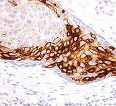 CA 19-9 Antibody